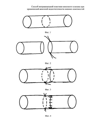 Способ интравазальной пластики венозного клапана при хронической венозной недостаточности нижних конечностей