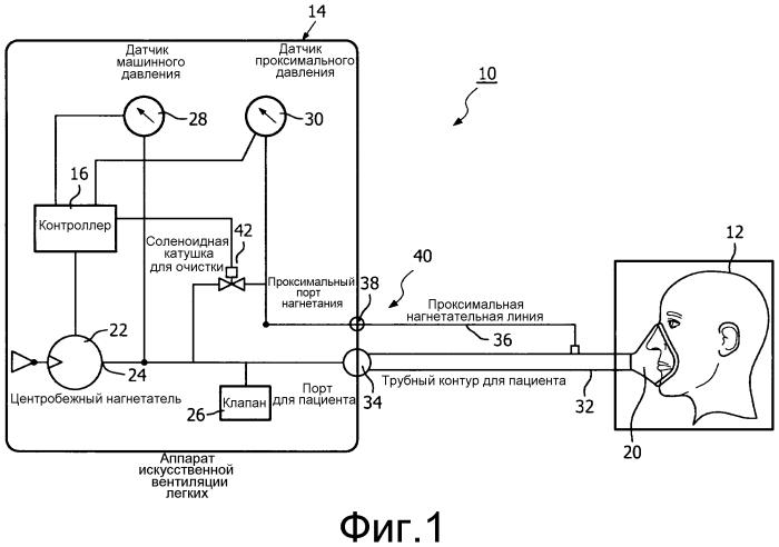 Система и способ очистки нагнетательной линии для аппарата искусственной вентиляции легких