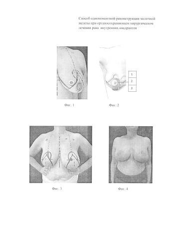 Способ одномоментной реконструкции молочной железы при органосохраняющем хирургическом лечении рака i и ii стадии внутренних квадрантов