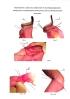 Способ формирования поперечного гастроеюноанастомоза после субтотальной дистальной резекции желудка