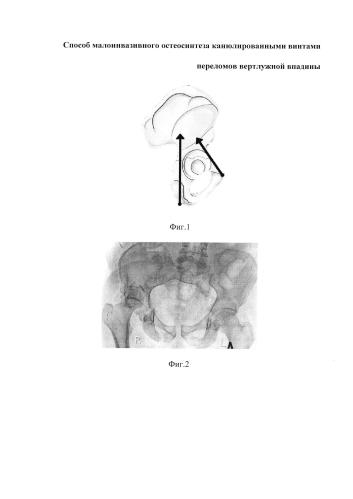 Способ малоинвазивного остеосинтеза канюлированными винтами переломов вертлужной впадины