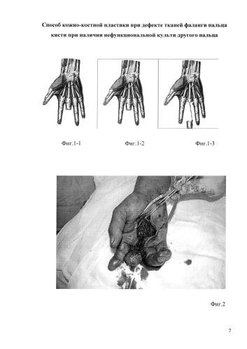 Способ кожно-костной пластики при дефекте тканей фаланги пальца кисти при наличии нефункциональной культи другого пальца