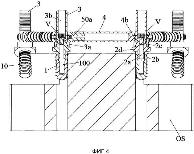 Модульная каркасная покрывная конструкция для зубных имплантатов