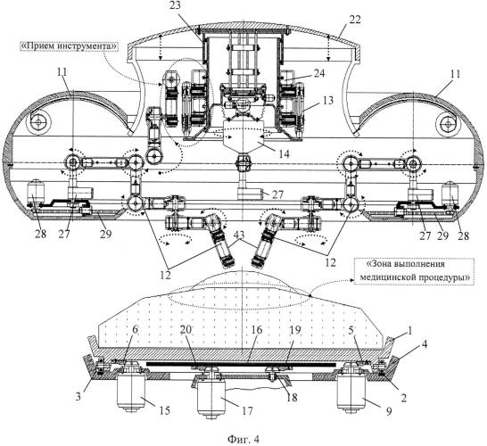 Функциональная структура продольного возвратно-поступательного перемещения устройства рентгеновского излучения в верхней части медицинского стола тороидальной хирургической робототехнической системы (вариант русской логики - версия 3)