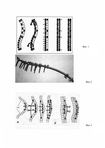 Способ оперативного лечения грудопоясничного сколиоза