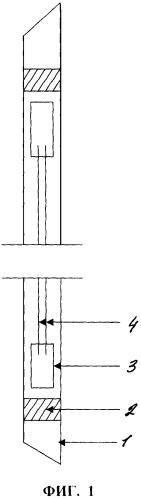 Желудочная спираль