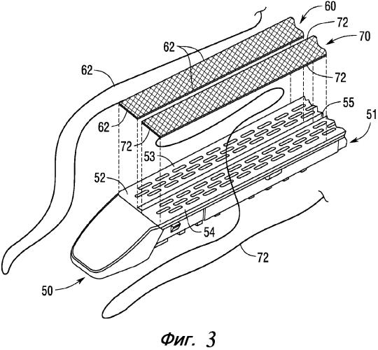 Хирургические кассеты со скобками с держалками для манипулирования разделенной тканью и способы их применения