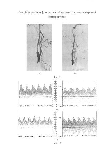 Способ определения функциональной значимости стеноза внутренней сонной артерии
