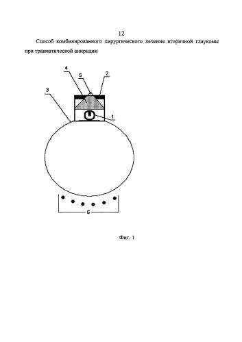 Способ комбинированного хирургического лечения вторичной глаукомы при посттравматической аниридии