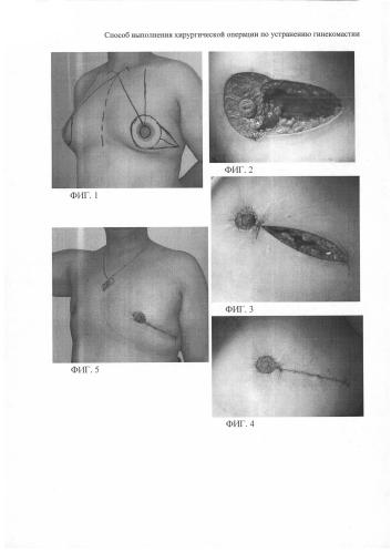 Способ выполнения хирургической операции по устранению гинекомастии