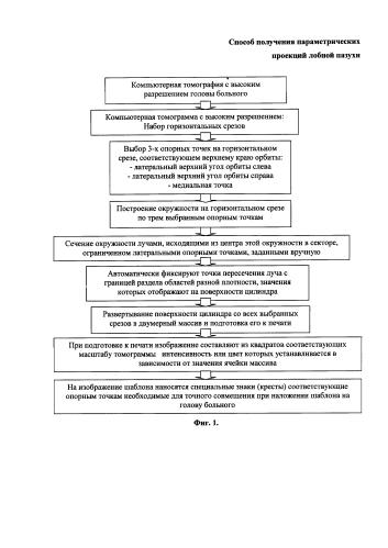 Способ определения параметров лобных пазух