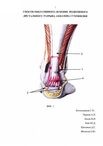 Способ оперативного лечения подкожного дистального разрыва ахиллова сухожилия