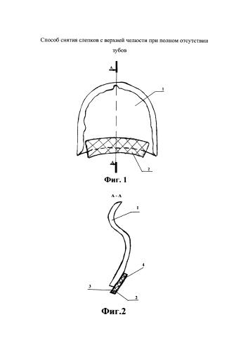 Способ снятия слепков с верхней челюсти при полном отсутствии зубов