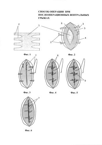 Способ операции при послеоперационных вентральных грыжах