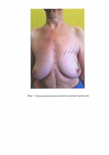 Способ профилактики экструзии силиконового имплантата после кожесохраняющей мастэктомии