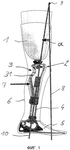 Способ управления искусственным ортезом или протезом коленного сустава