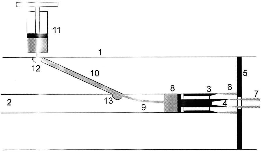 Вакуумный диодный узел сильноточного ускорителя электронов с двойным катодом и механизмом оперативного изменения рабочего тока