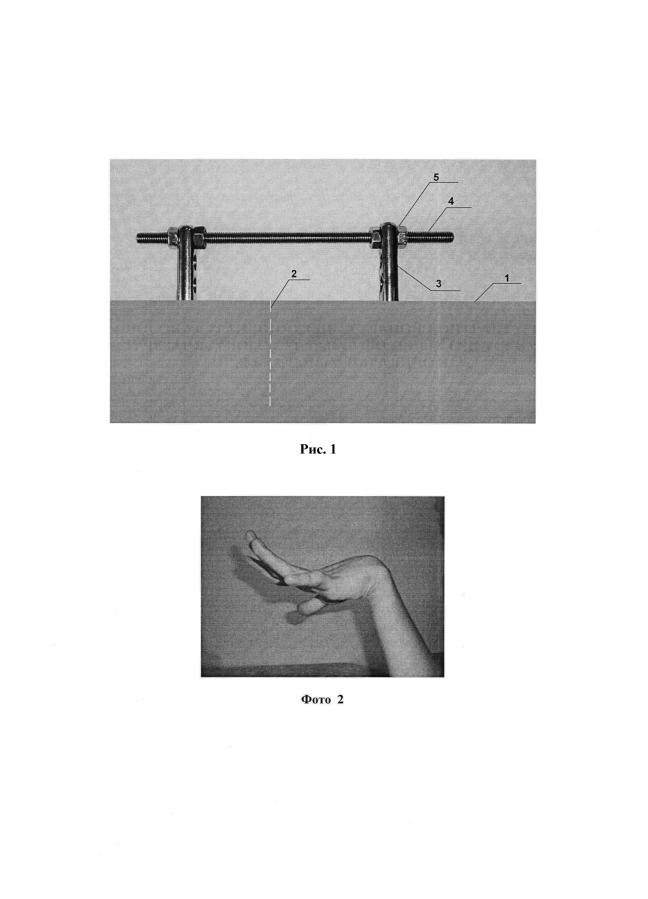 Способ устранения сгибательной контрактуры лучезапястного сустава у больных с детским церебральным параличом