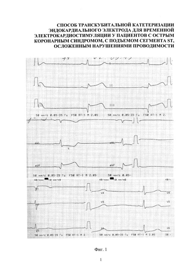 Способ катетеризации сердца для установки эндокардиального электрода для временной электрокардиостимуляции у пациентов с острым коронарным синдромом, с подъемом сегмента st, осложенным нарушениями проводимости (варианты)