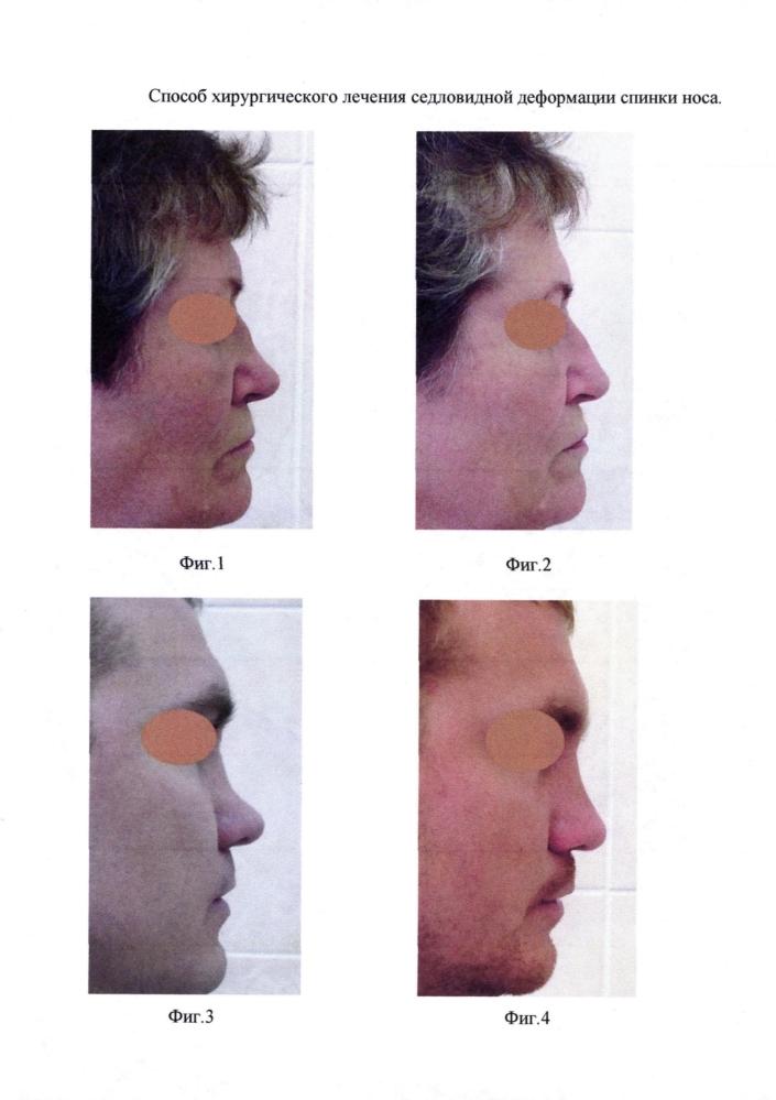 Способ хирургического лечения седловидной деформации спинки носа