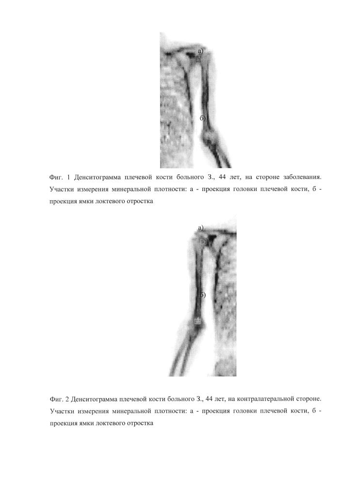 Способ диагностики контрактур и деформаций локтевого сустава