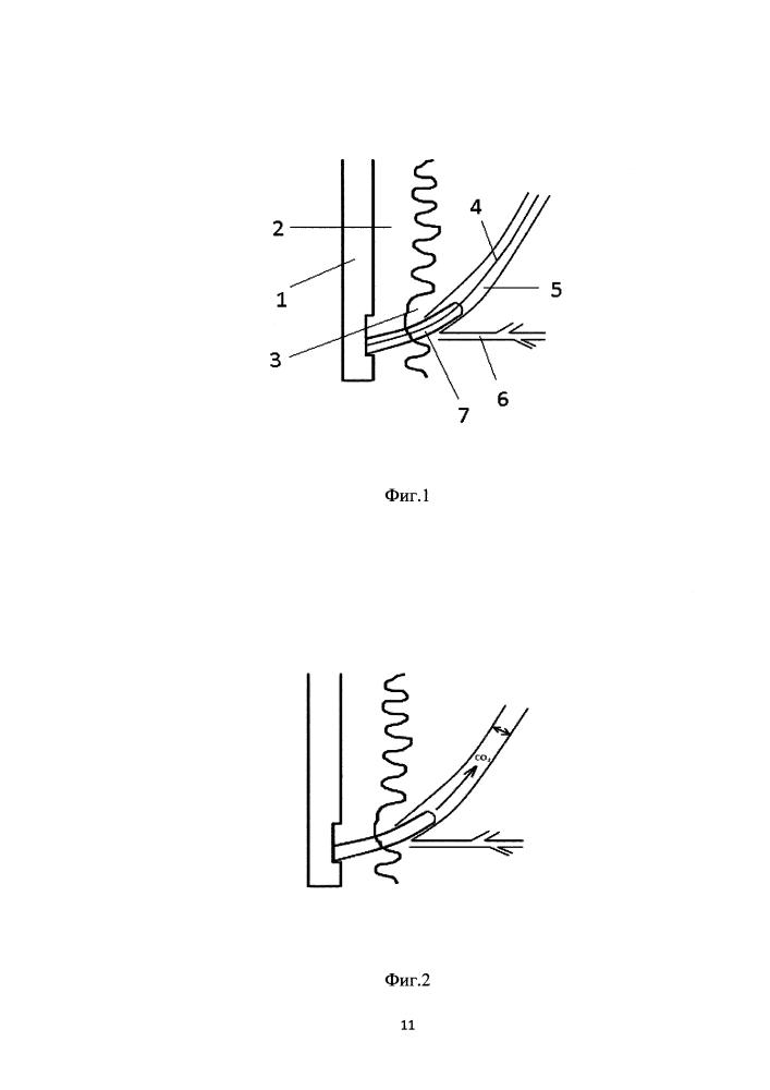 Способ эндоскопической папиллосфинктеротомии
