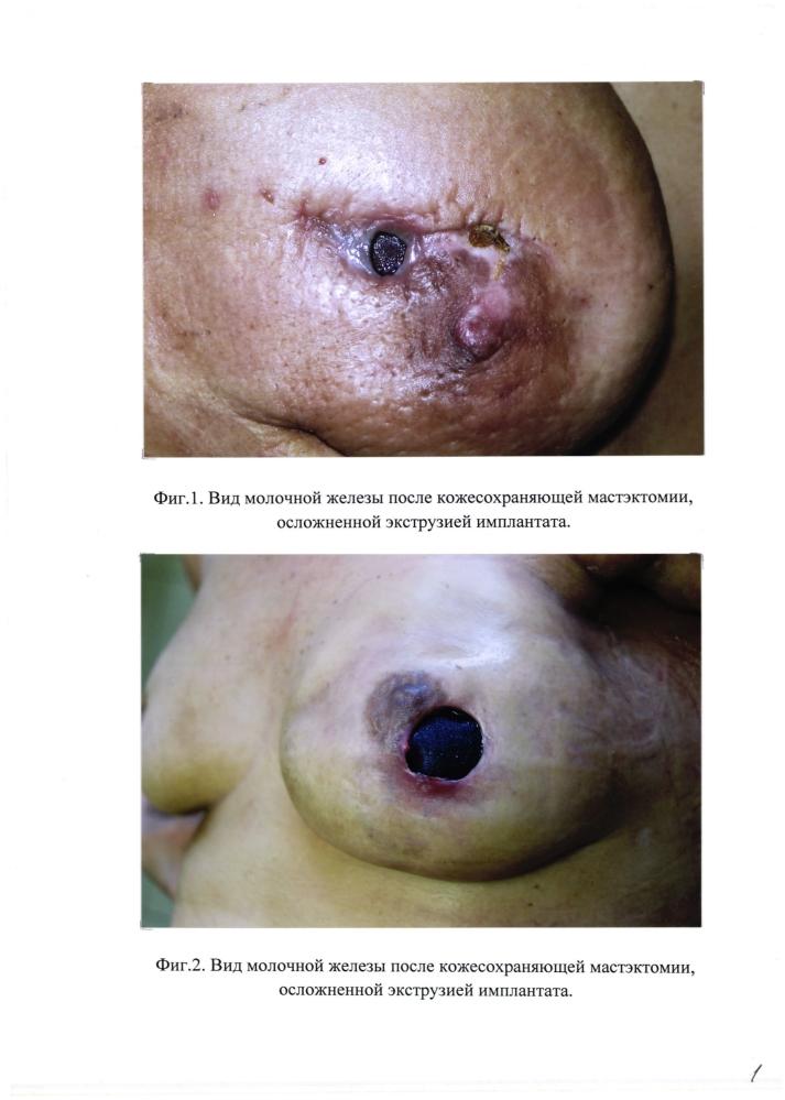Способ хирургической профилактики и лечения экструзии силиконового имплантата при реконструктивных операциях на молочной железе