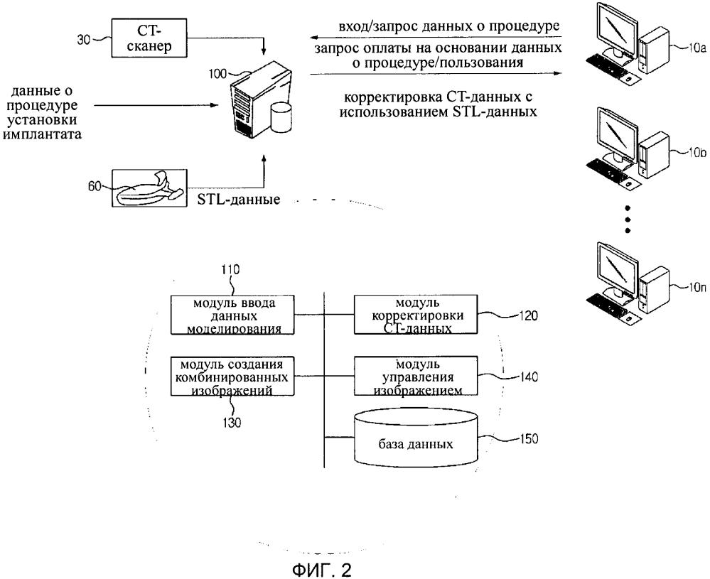 Способ и система для создания изображения имплантата