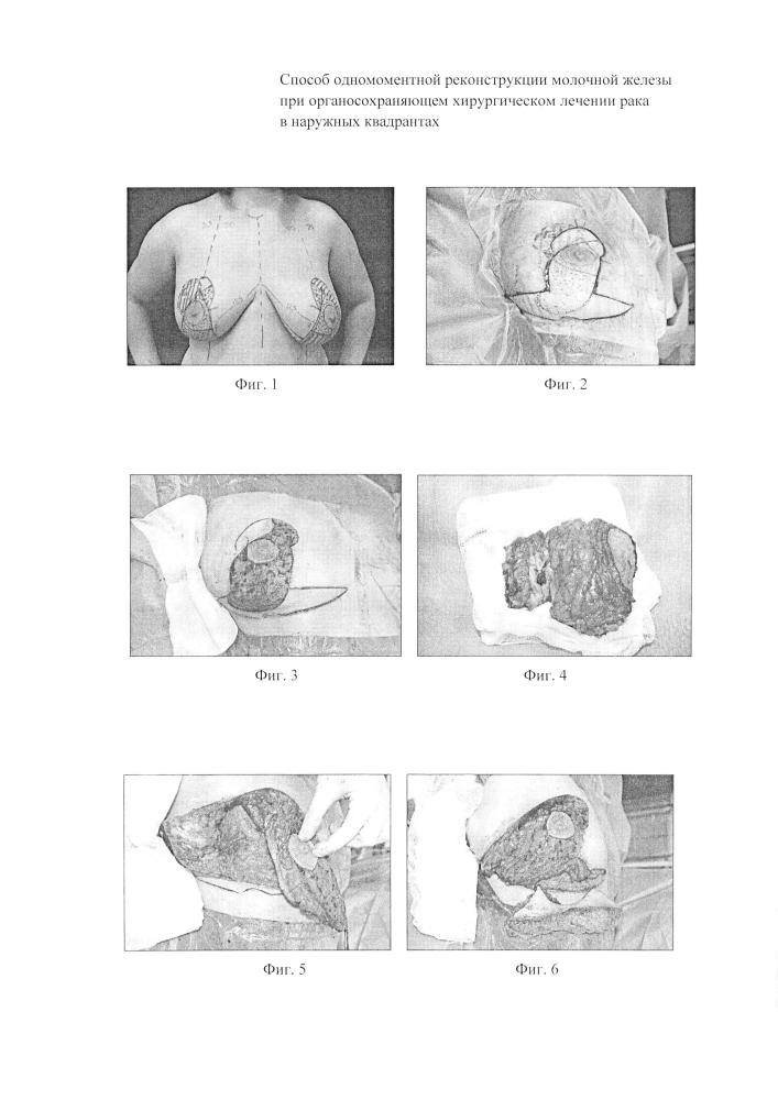 Способ одномоментной реконструкции молочной железы при органосохраняющем хирургическом лечении рака в наружных квадрантах