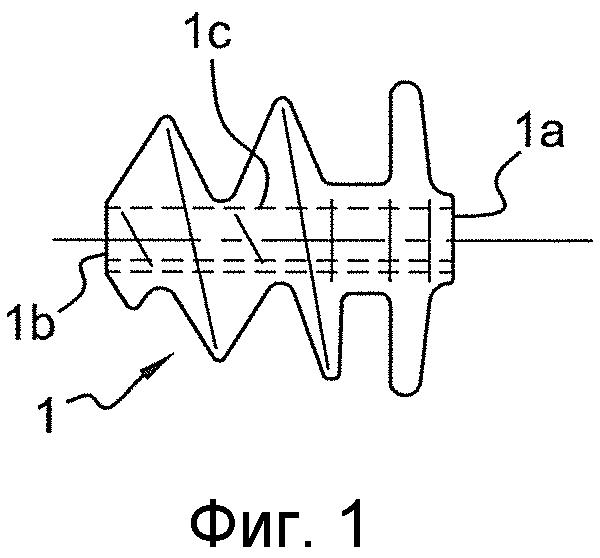 Устройство, содержащее множество имплантов для крепления протезного материала