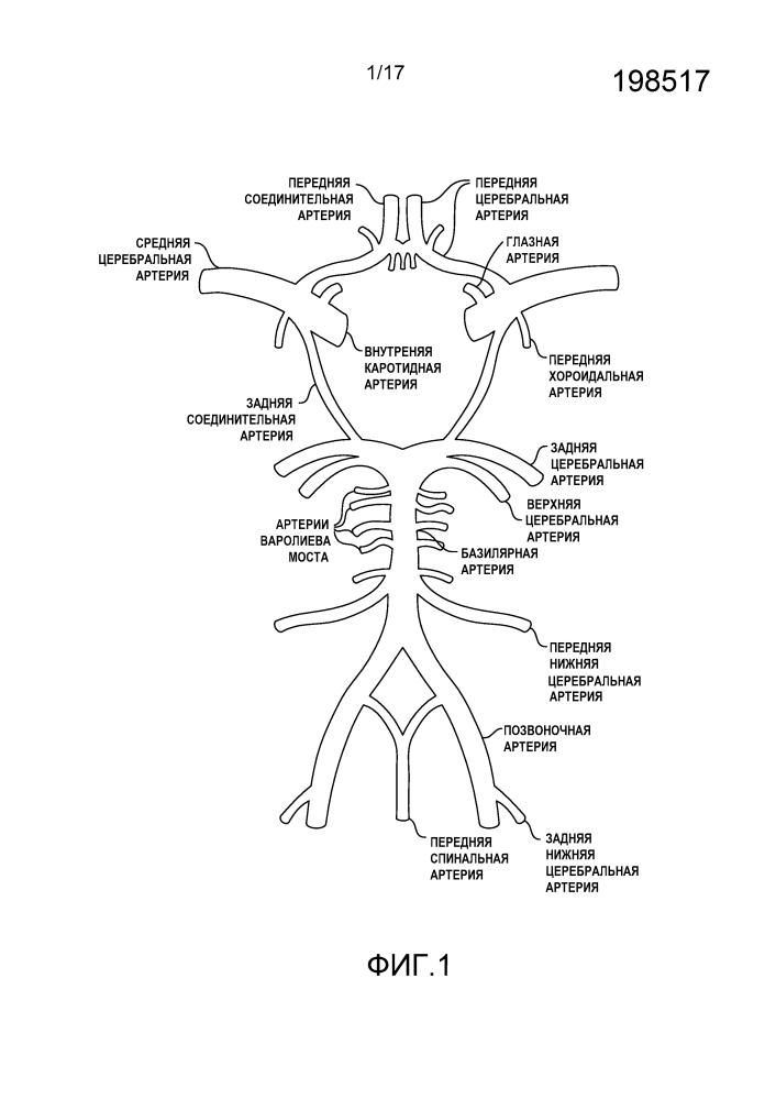 Композиции и способы улучшения прогноза человека с субарахноидальным кровоизлиянием