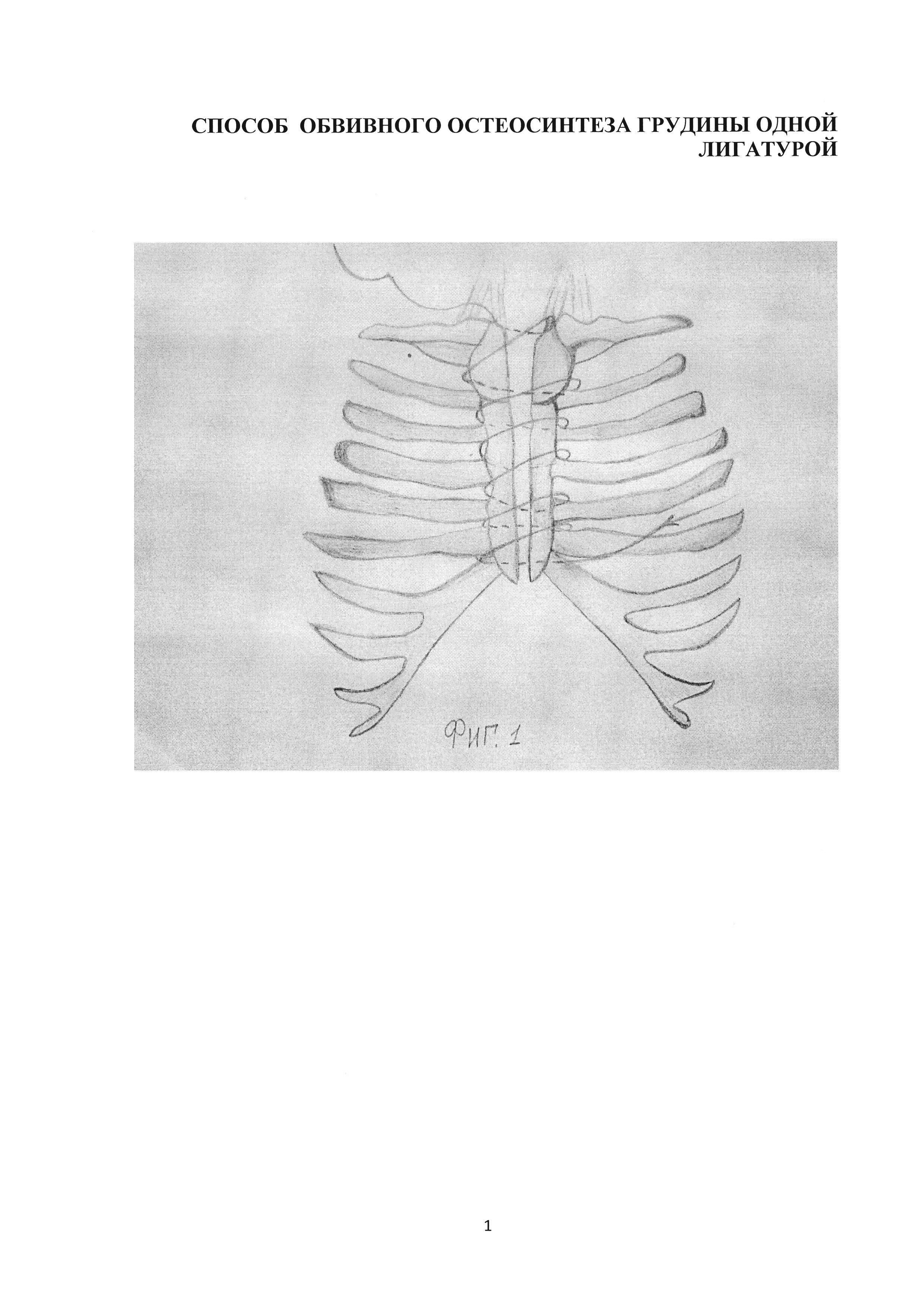 Способ обвивного остеосинтеза грудины одной лигатурой