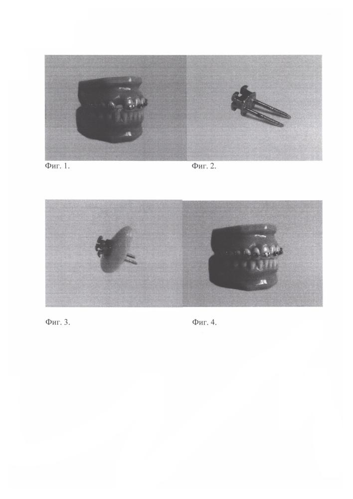 Устройство для замещения дефекта зубного ряда при ортодонтическом лечении пациентов с адентией с использованием брекет-системы