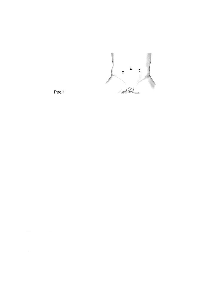 Эндохирургическое лечение выпадений прямой кишки у детей