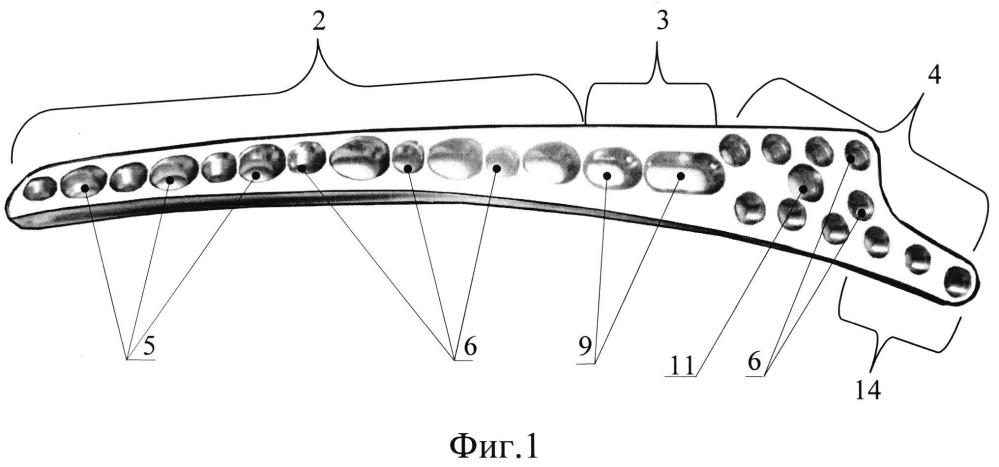 Пластина задняя дистальная комбинированная для остеосинтеза плечевой кости