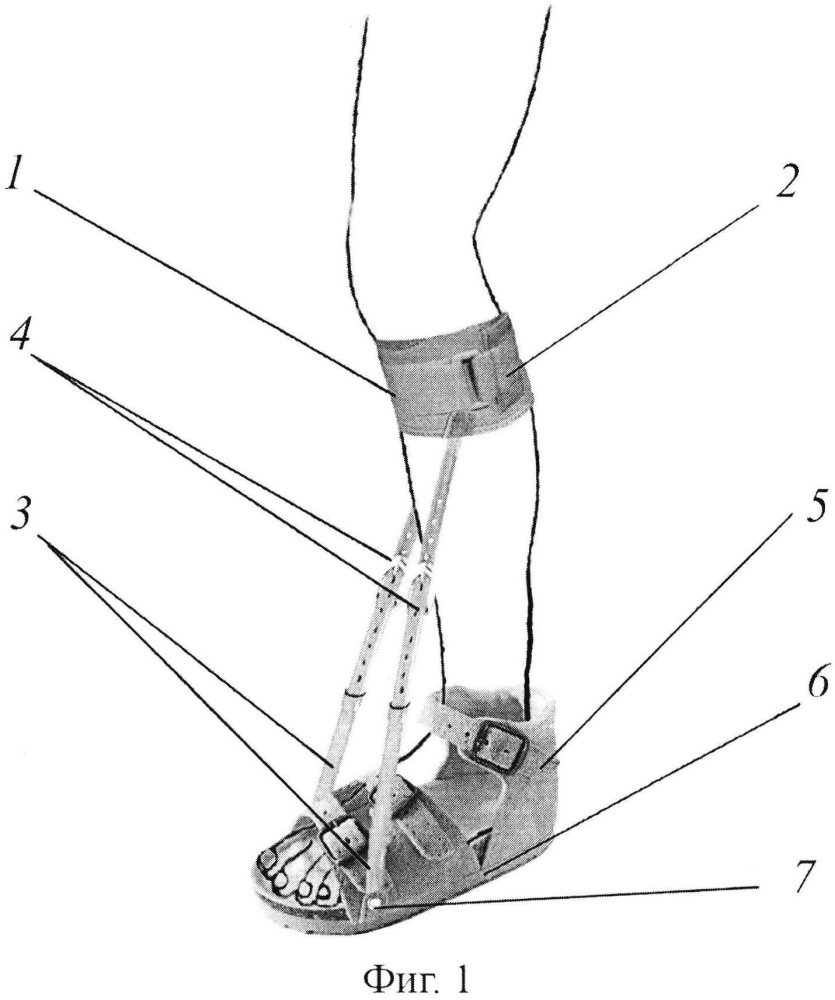 Устройство для лечения контрактуры ахиллова сухожилия