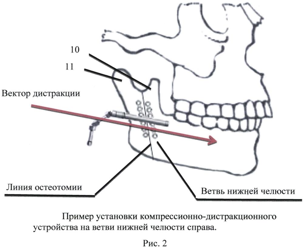 Способ для расширения ветви нижней челюсти и компрессионно-дистракционное устройство для его осуществления