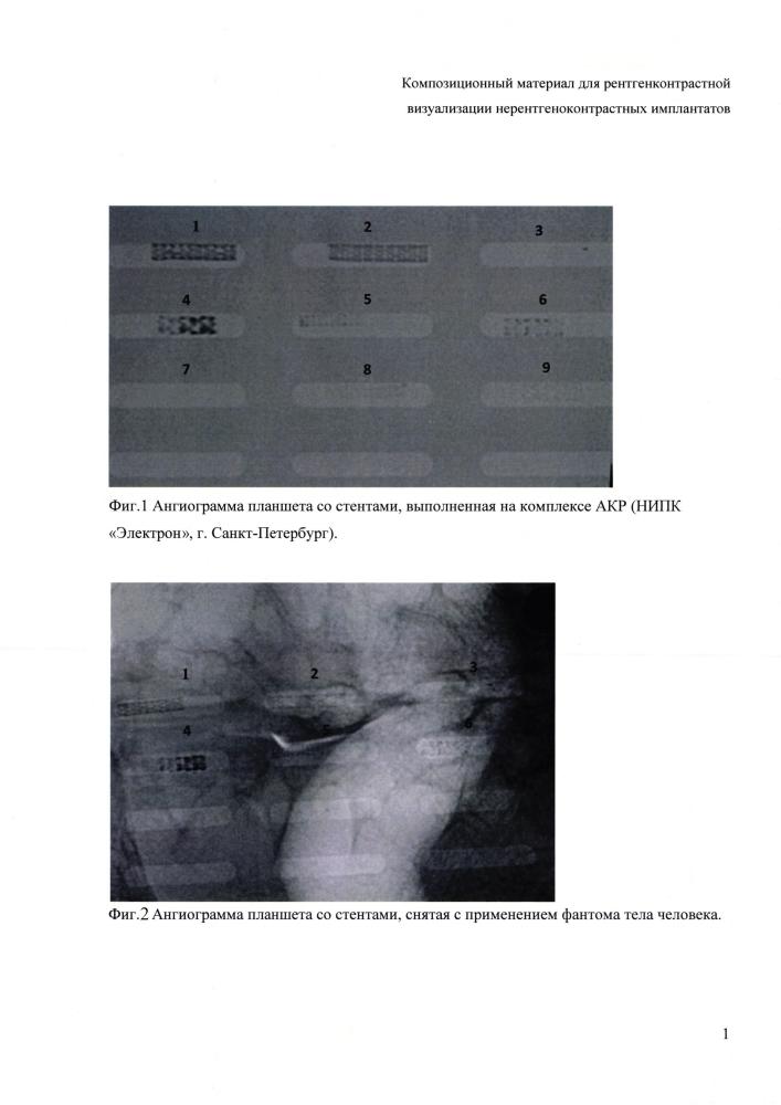 Композиционный материал для рентгенконтрастной визуализации нерентгеноконтрастных имплантатов