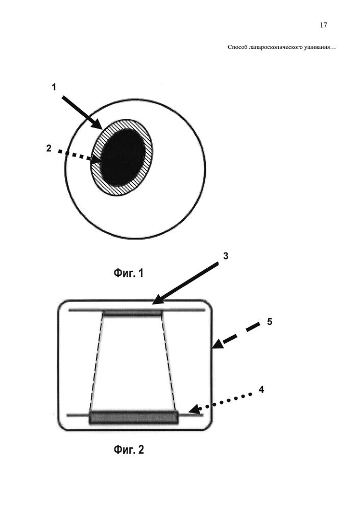 Способ лапароскопического ушивания перфоративной язвы луковицы двенадцатиперстной кишки без признаков стенозирования