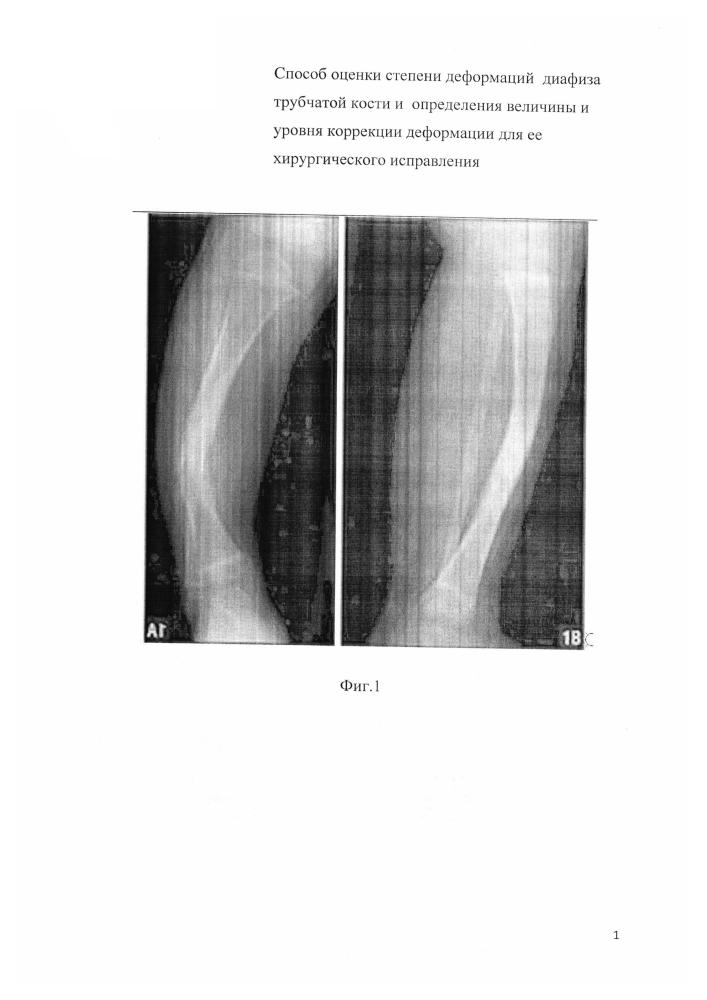 Способ оценки степени деформаций диафиза трубчатой кости и определения величины и уровня коррекции деформации для ее хирургического исправления