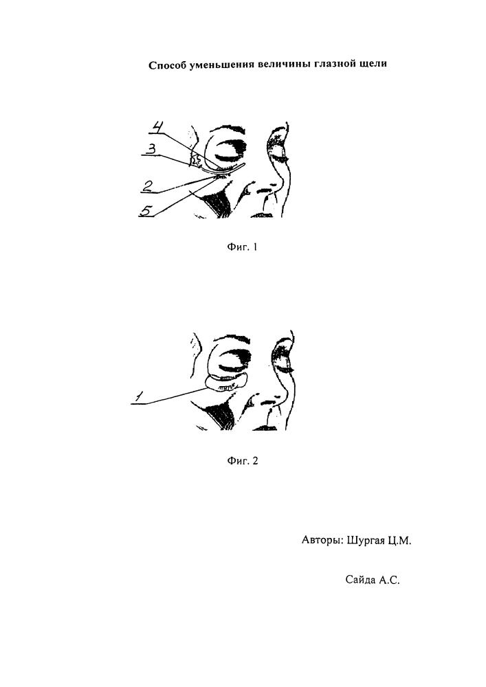 Способ уменьшения величины глазной щели