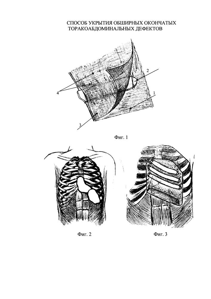 Способ укрытия обширных окончатых торакоабдоминальных дефектов
