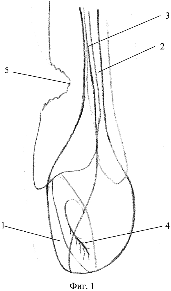 Способ оптимизации консолидации переломов костей голени