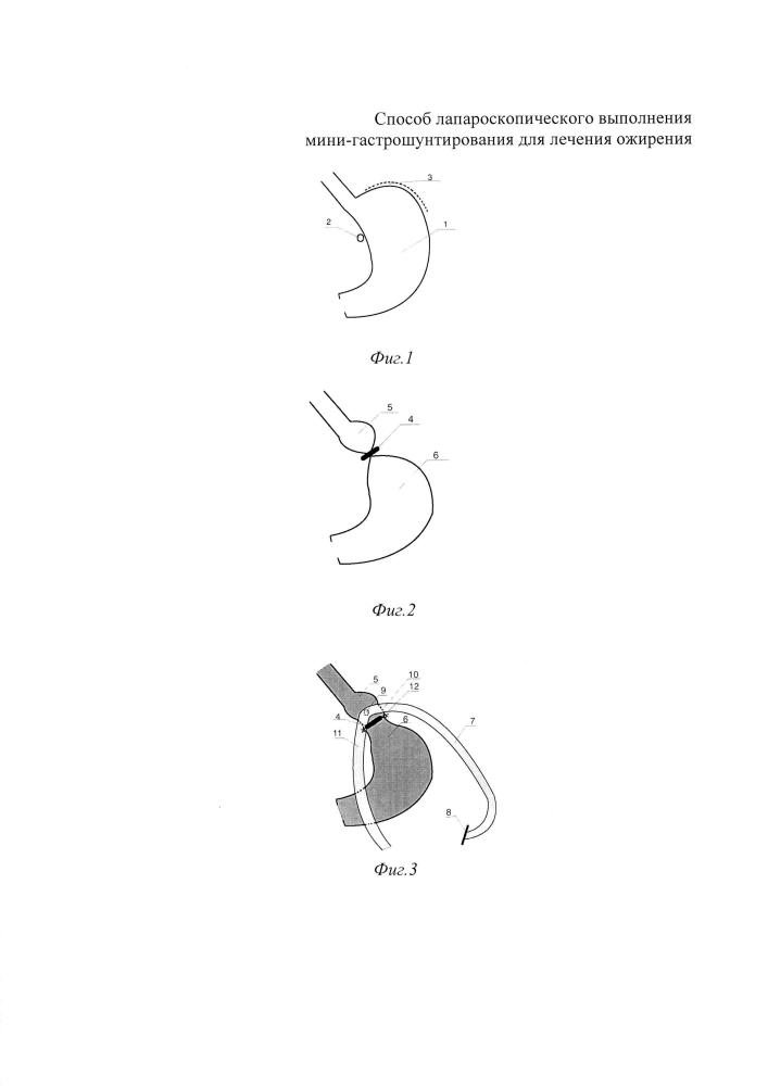 Способ лапароскопического выполнения мини-гастрошунтирования для лечения ожирения