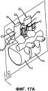 Межостистый имплантат и инструмент для имплантации межостистого имплантата
