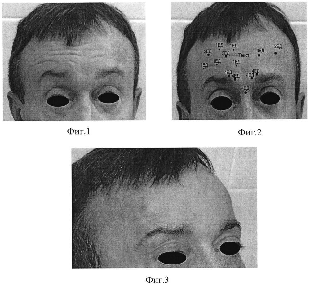 Способ коррекции асимметрии верхней трети лица