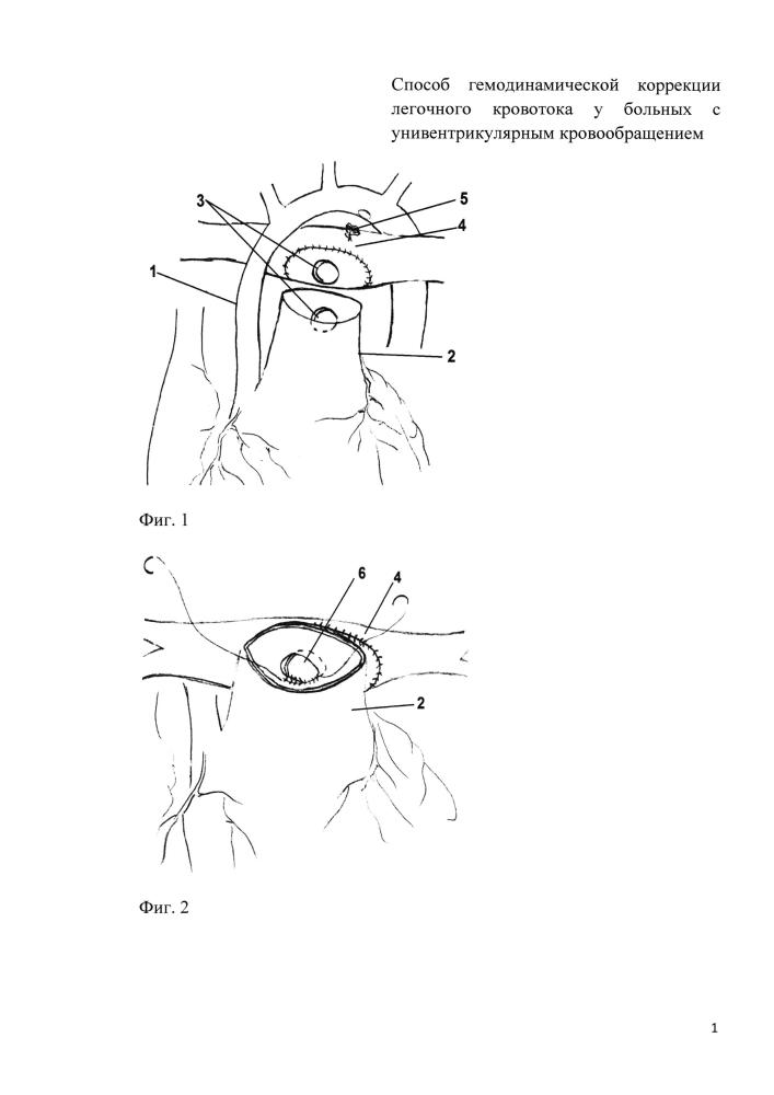 Способ гемодинамической коррекции легочного кровотока у больных с унивентрикулярным кровообращением