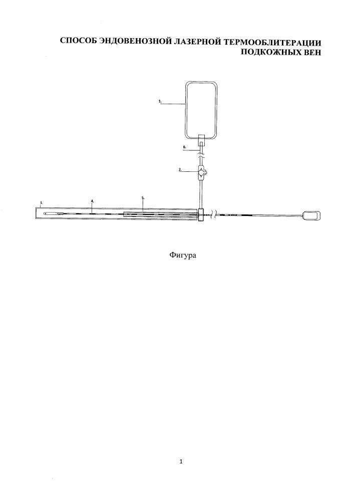 Способ эндовенозной лазерной термооблитерации подкожных вен