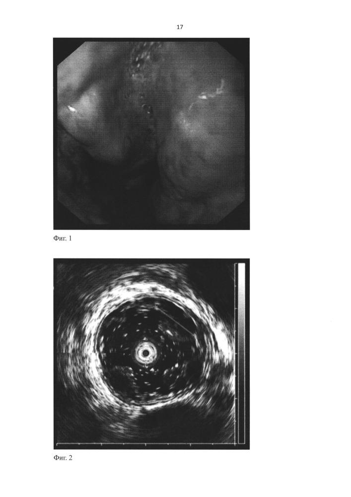 Способ эндоскопического склерозирования варикозно-расширенных вен пищевода и желудка