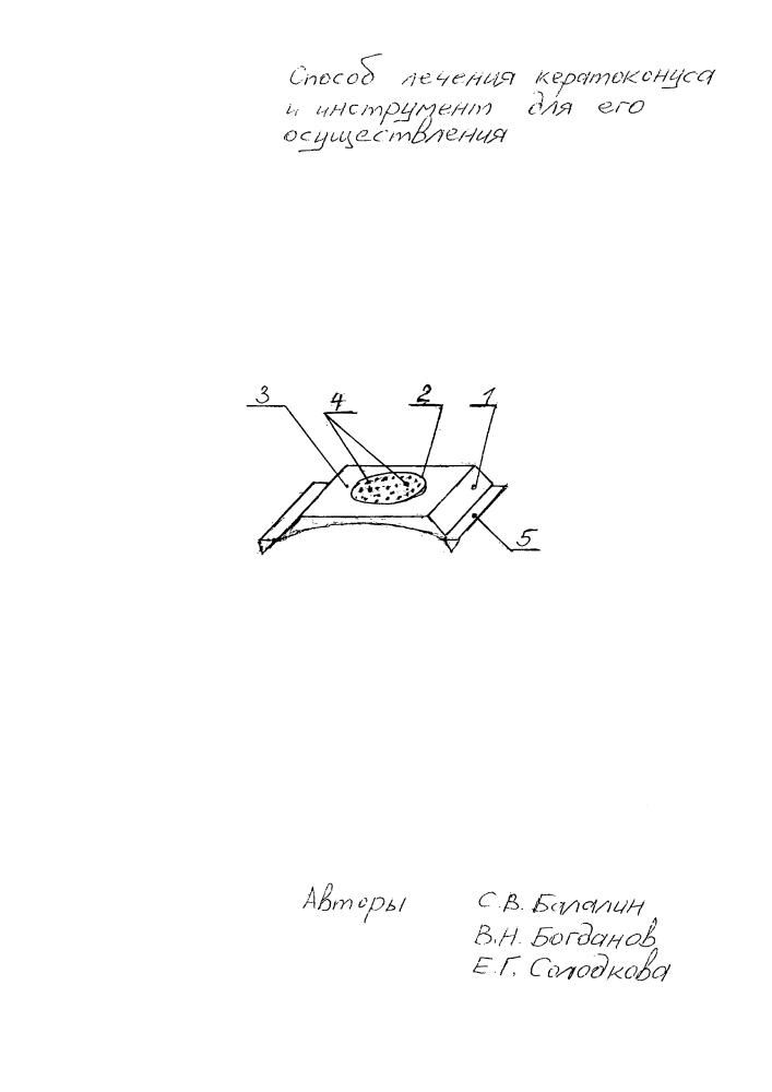 Способ лечения кератоконуса и инструмент для его осуществления